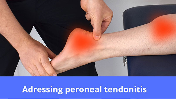 Can Shoes Cause Peroneal Tendonitis