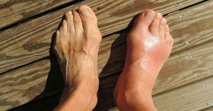 Reduce Swelling In The Feet